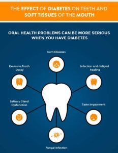 Dental problems associated with diabetes