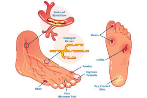 Foot problems caused by diabetes
